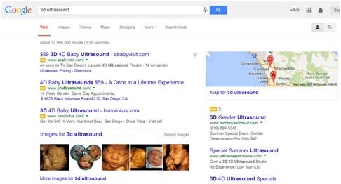 3d-ultrasound-google-search
