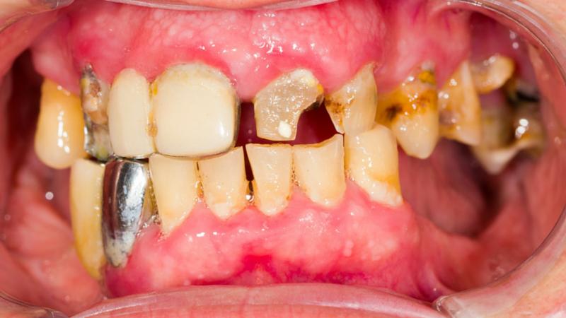 bad-dental-work